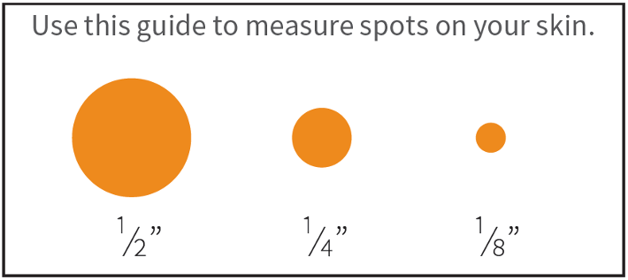 a guide to measure spots on your skin